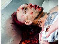 My Riot - Botox